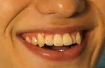 水田航生 前歯