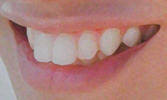 中島健人 前歯のイラスト