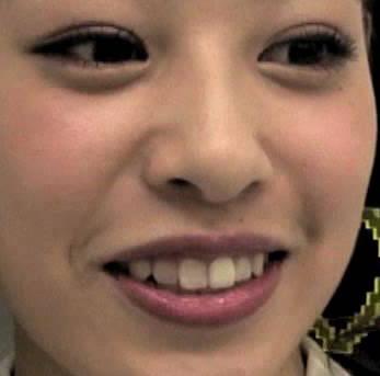 中島美央 前歯
