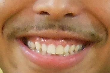 NESMITH 前歯