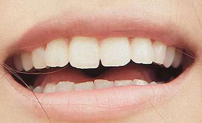 西内まりや 前歯