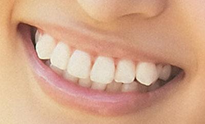 岡本玲 前歯