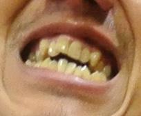 大窪シゲキ 前歯