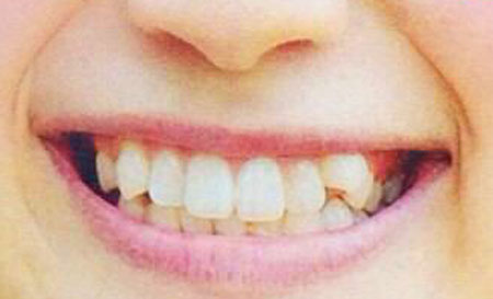 大野いと 前歯