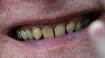 ポール・アレン 前歯