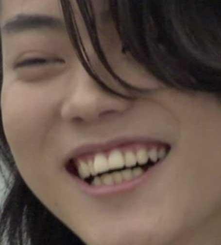 菅田将暉 歯