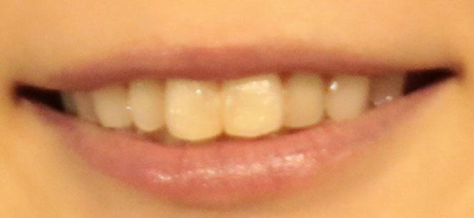 中川翔子 前歯