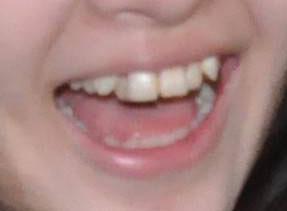 玉川来夢 八重歯