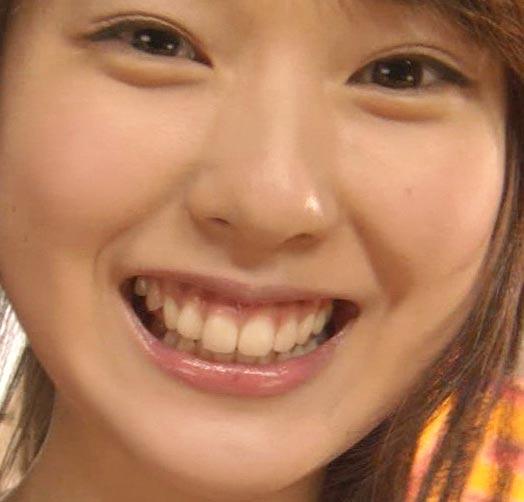 戸田恵梨香 上唇小帯