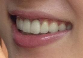 友利新 前歯