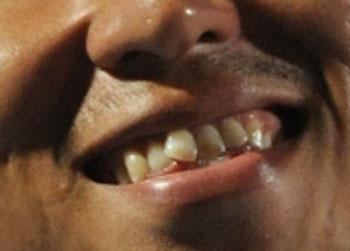 豊田陽平 歯
