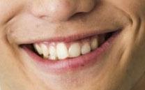 土屋シオン 前歯