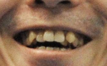 内村航平 前歯