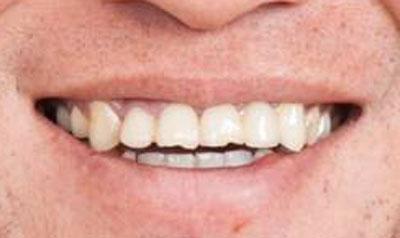岡野雅行 前歯