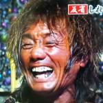 山形ユキオさんの前歯の画像(差し歯・銀歯・変色)