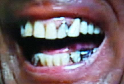 山形ユキオ 前歯