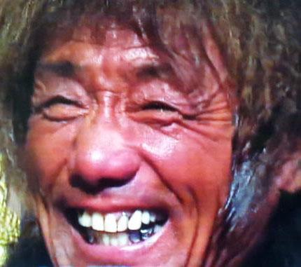 山形ユキオ 歯