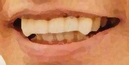 横尾渉 前歯のイラスト