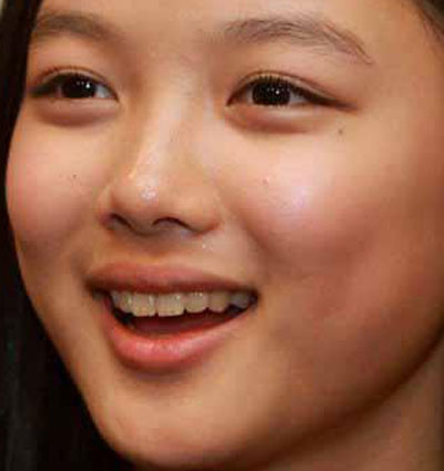 Kim Yoo Jung 前歯