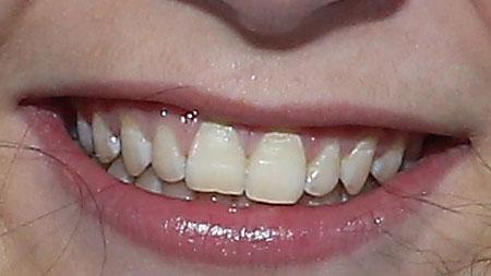 ソトニコワ 前歯