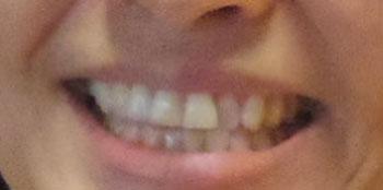 赤江珠緒 前歯