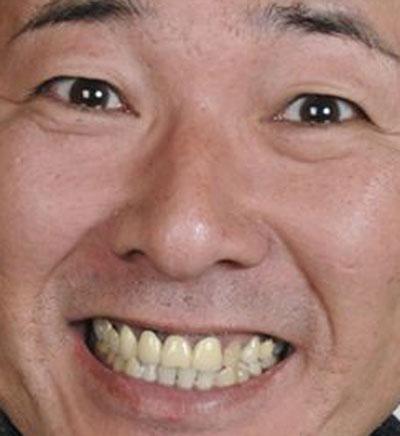 布川敏和 前歯の差し歯