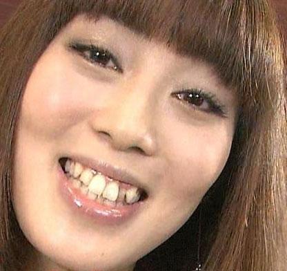 日笠陽子 八重歯