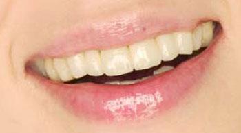 石野真子 前歯