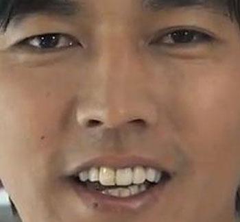 要潤 前歯