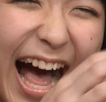 HKT48 松岡菜摘 奥歯