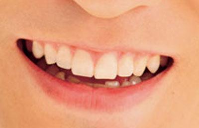 森山直太朗 前歯