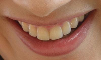 菜々緒の前歯の画像