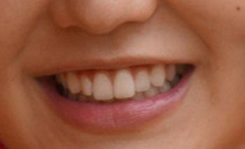 おのののか 前歯