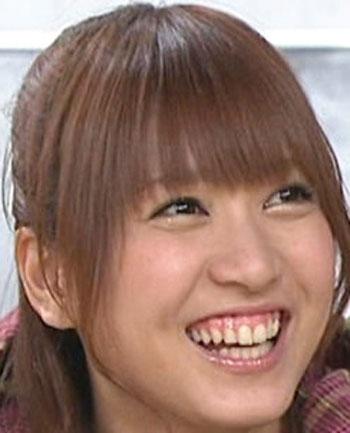 大島麻衣 AKB48時代 歯茎