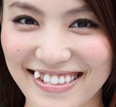 田野アサミ 八重歯