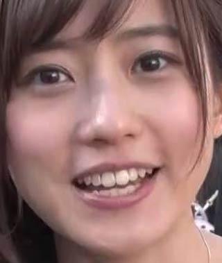 段文凝 歯