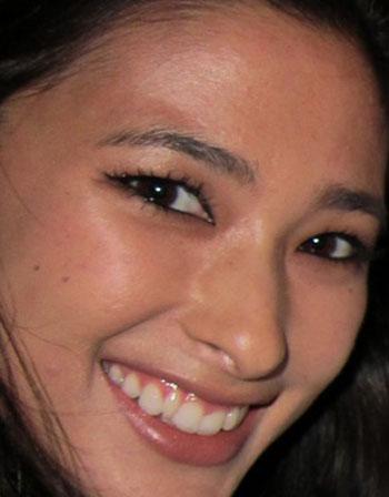 メロディー洋子 矮小歯