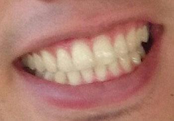 ONE OK ROCK taka 前歯