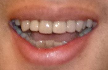 キャイーン 天野 前歯