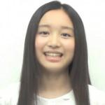 青山美郷さんの前歯の画像