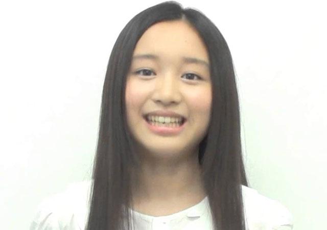 青山美郷さんの前歯の画像 - 僕...