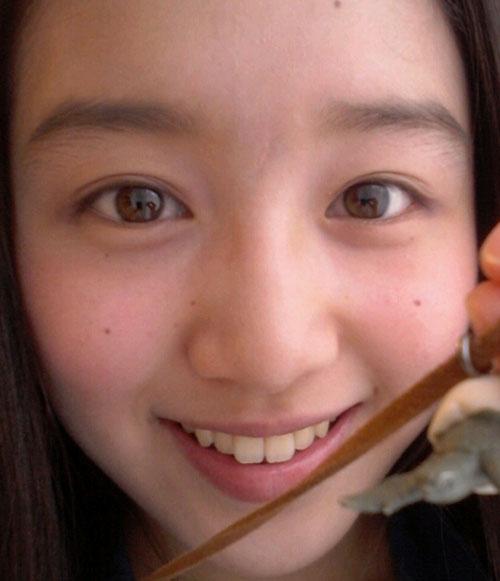 青山美郷 前歯の画像