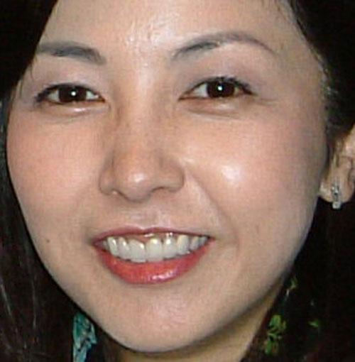 麻木久仁子の前歯の写真