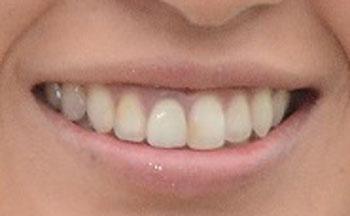 浅尾美和 前歯 差し歯