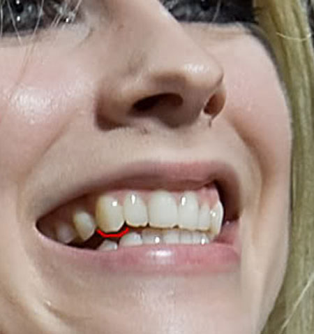 avril lavigne teeth