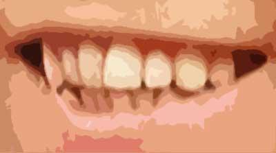 堂本剛 前歯
