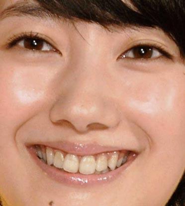 波瑠 前歯