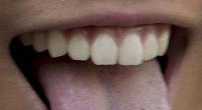 岩田剛典 前歯