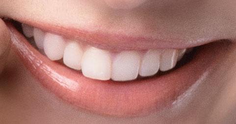 加賀美セイラ 前歯の写真