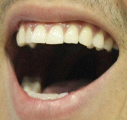 北島康介 前歯